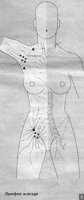 limfne žlezde - limfna drenaža