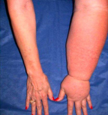 limfni edem - limfna drenaža