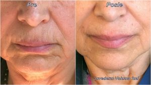 Juvederm Voluma 2ml